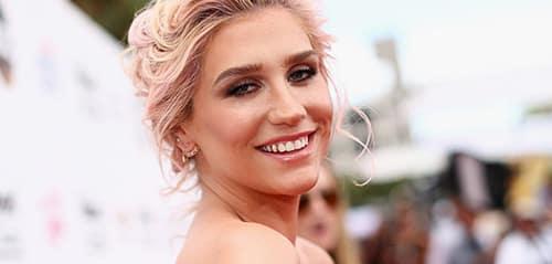 Koleksi Lagu Terbaik Kesha
